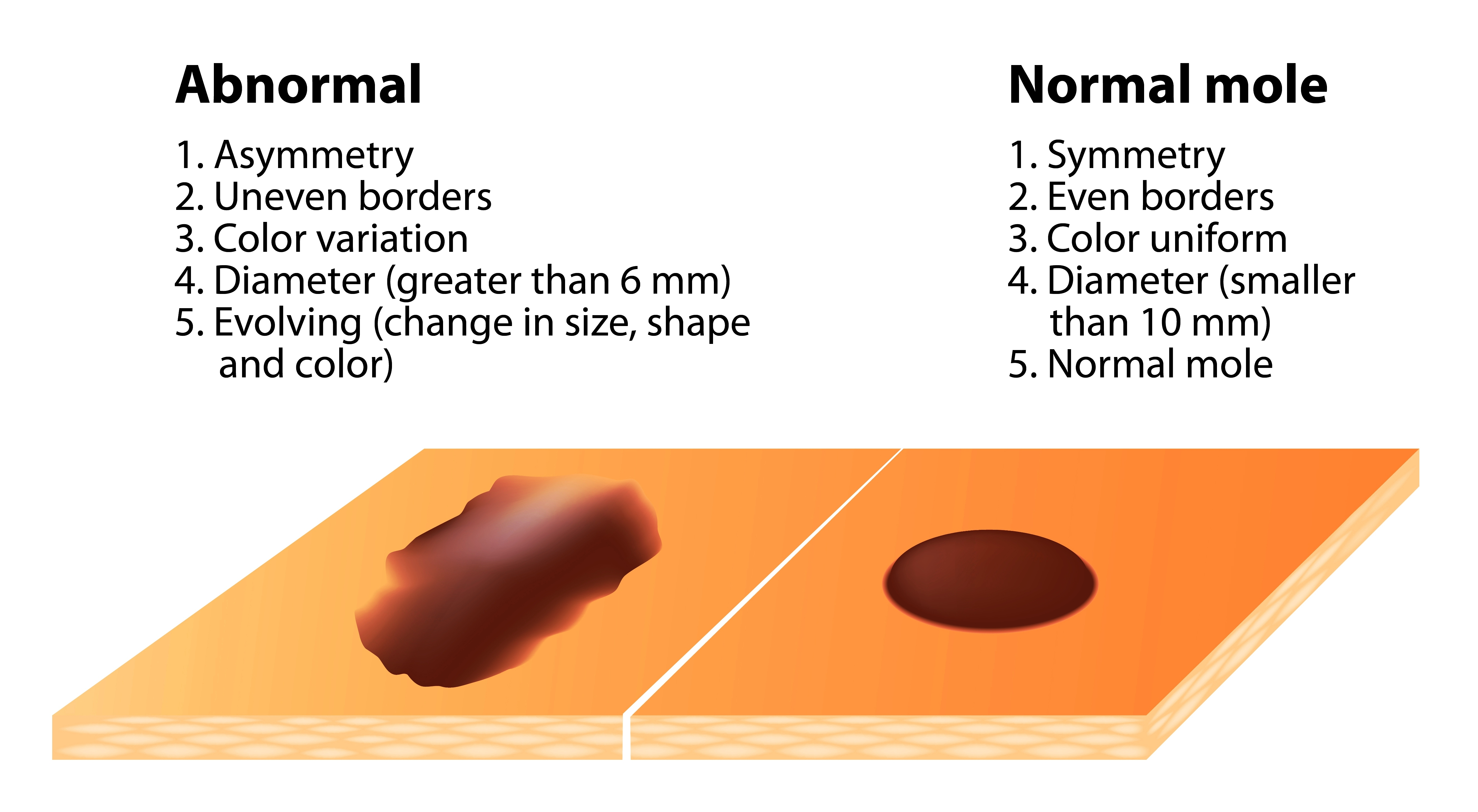 Signs and symptoms of skin cancer