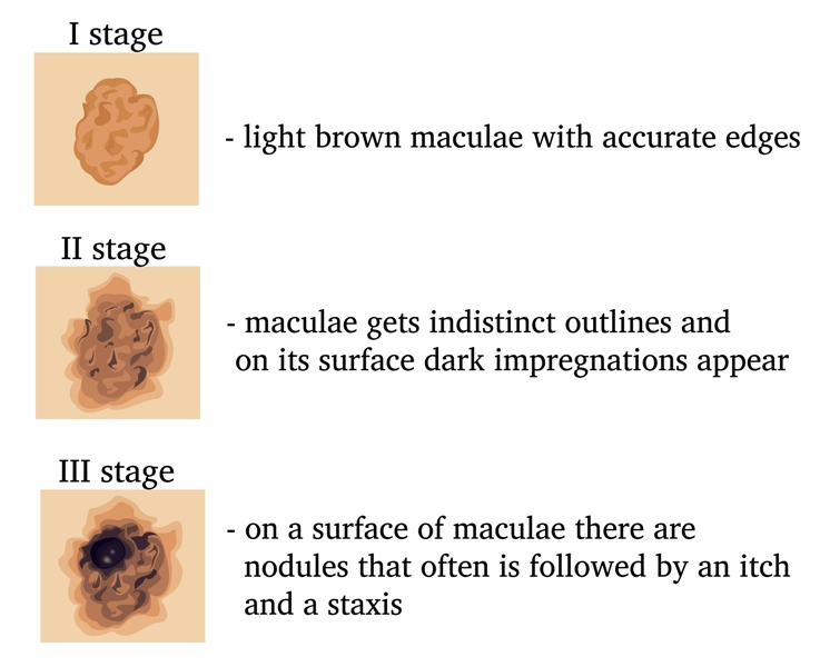 Stages of transformation of Malignant Lentigo in the Melanoma