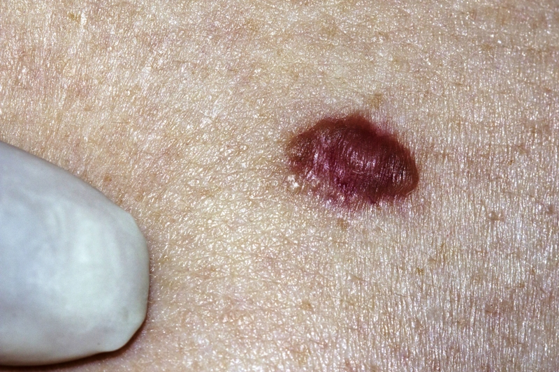 Basal cell carcinoma on the skin of a patient
