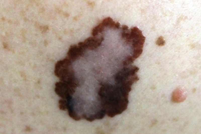 Melanoma on the skin of a patient