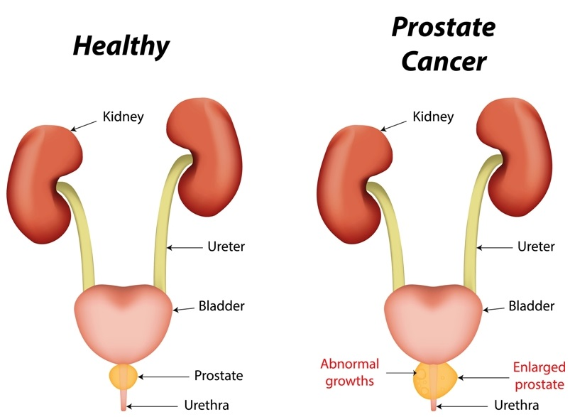 Prostate cancer image