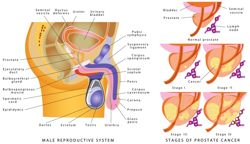 Picture of a male reproductive system and prostate cancer