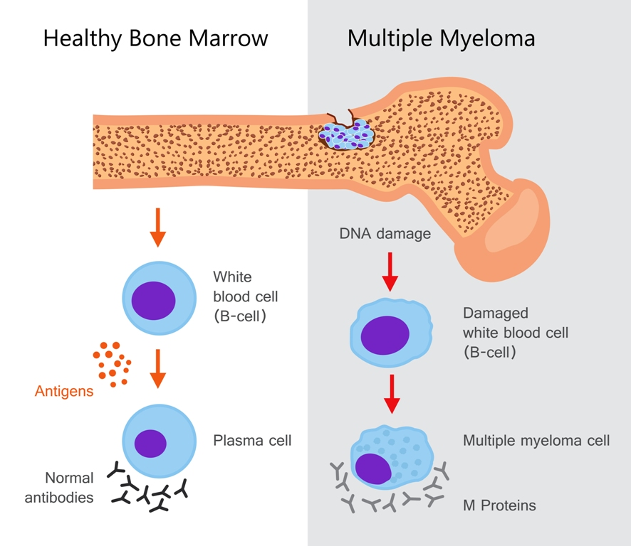 Multiple myeloma image