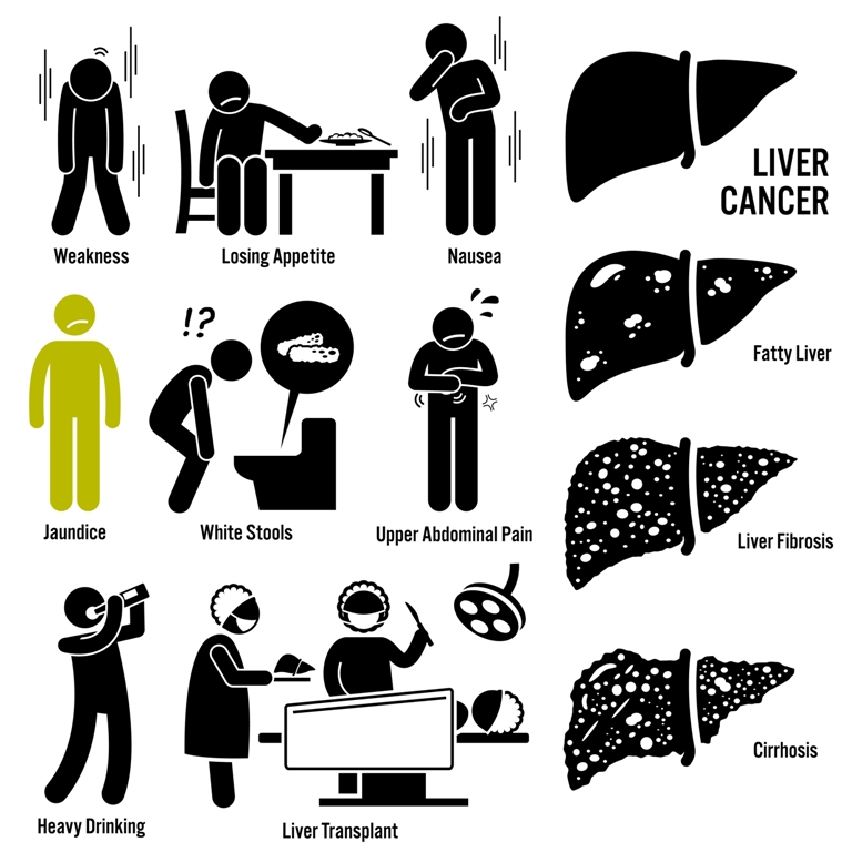 Liver cancer overview infographics