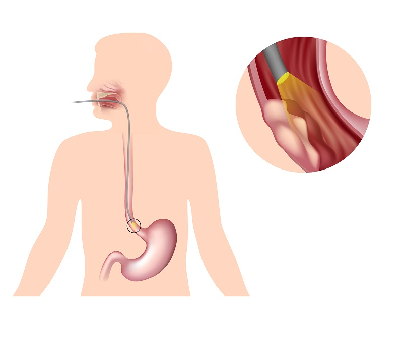 Location of primary esophageal cancer