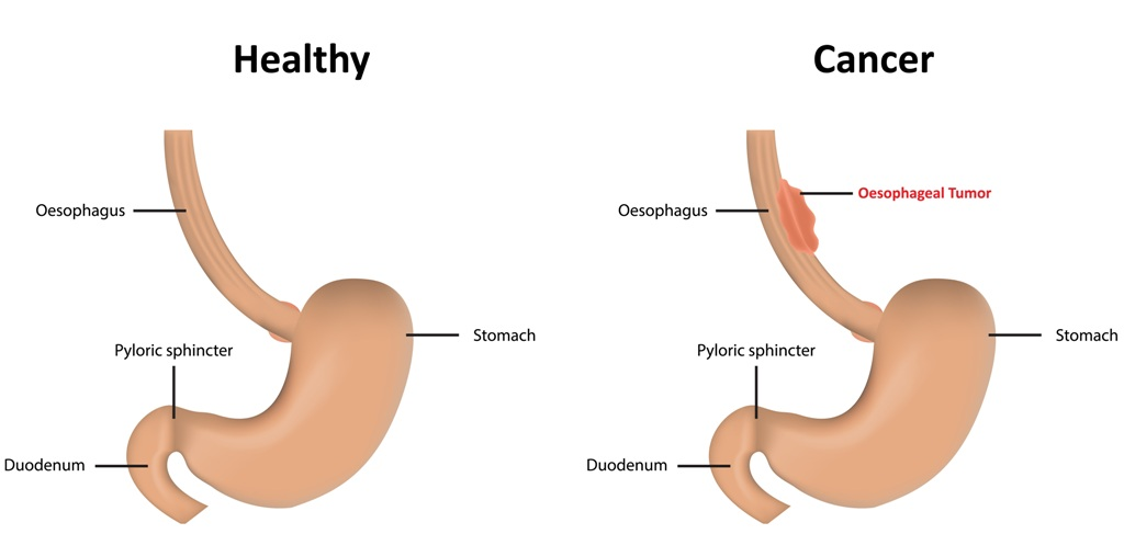 Healthy GI tract vs section with esophageal cancer/tumor
