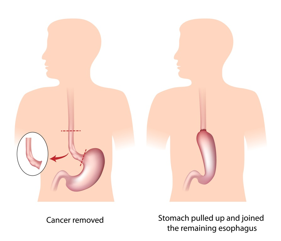 Esophageal cancer surgery image