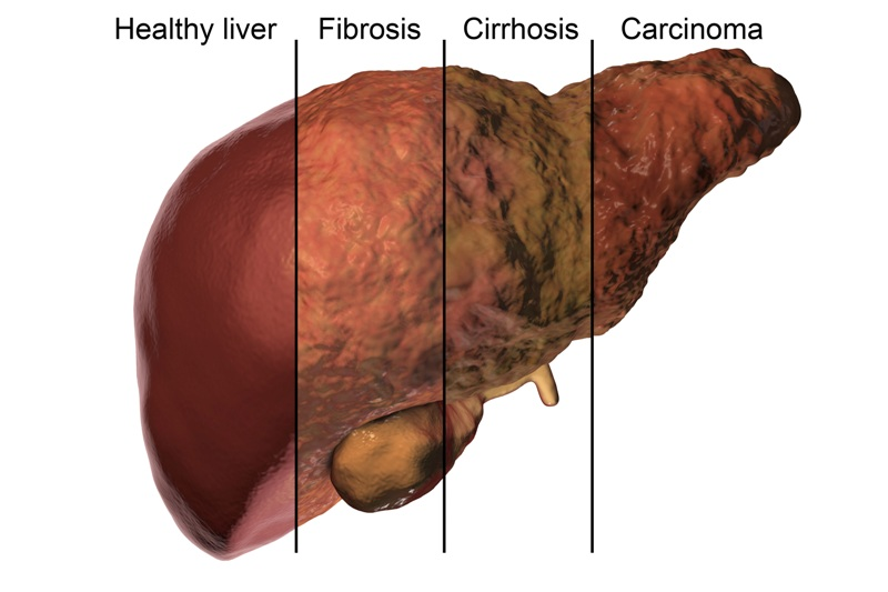 Image showing effects on liver due to different liver problems