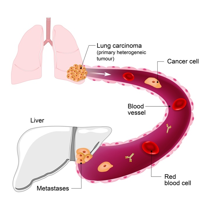 Lung cancer metastasis to liver