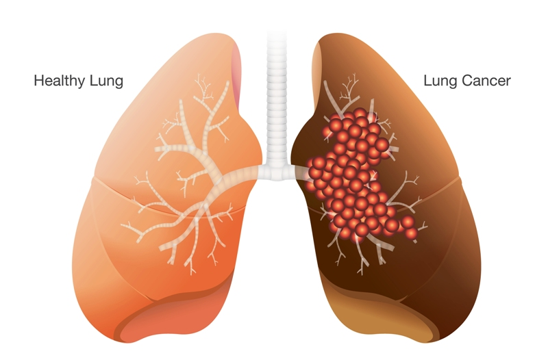 A healthy lung vs a lung with cancer