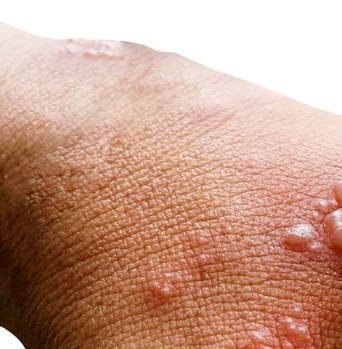 Skin infected with herpes zoster virus on the arms of a person