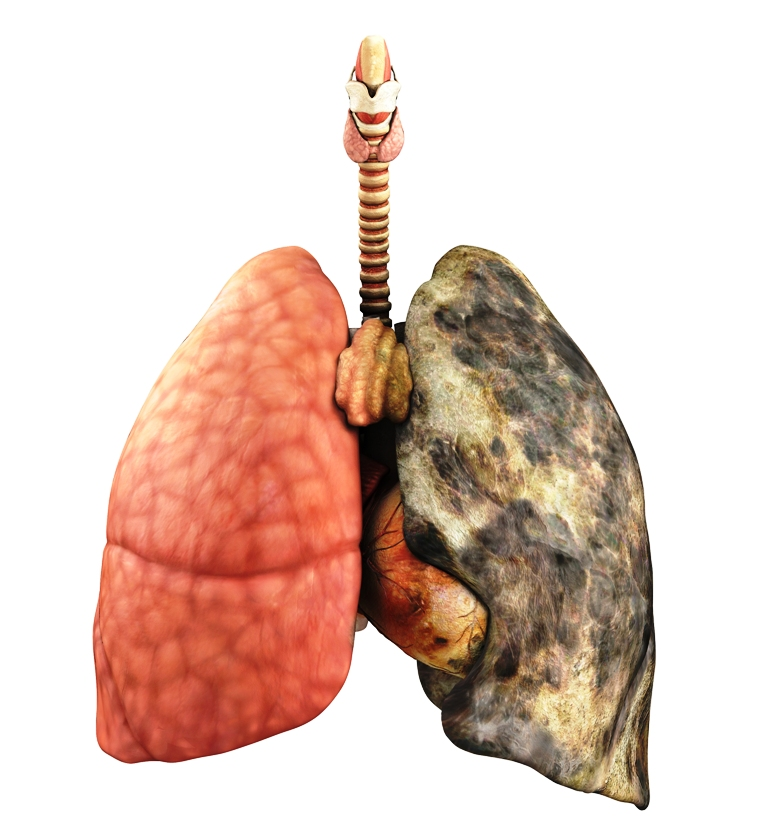 An illustration of a healthy lung vs a lung with cancer