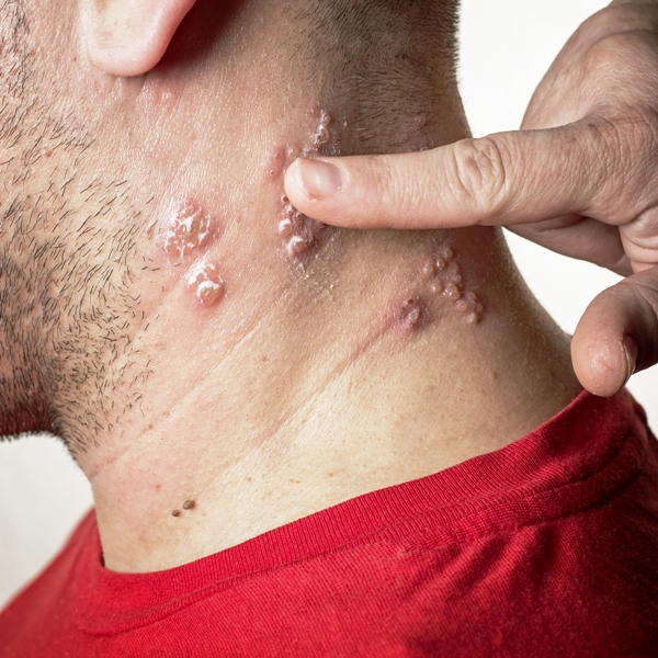 Raised red bumps and blisters caused by shingles virus