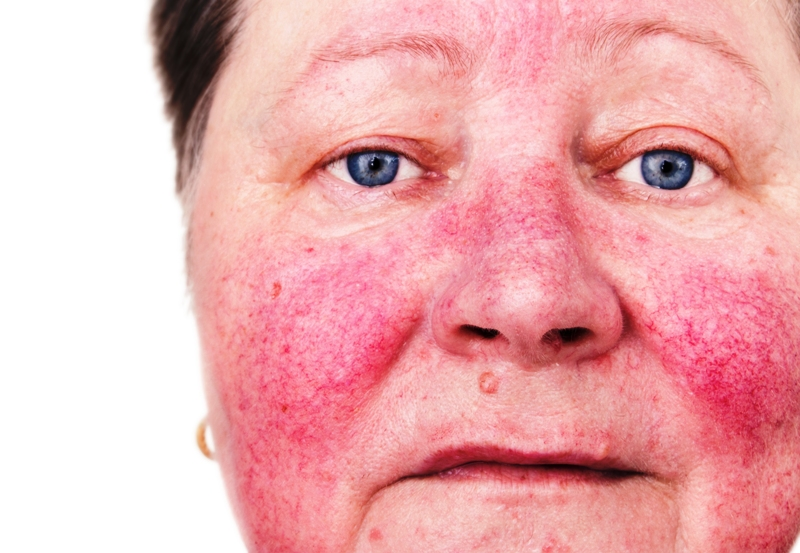 Rosacea signs and symptoms on face