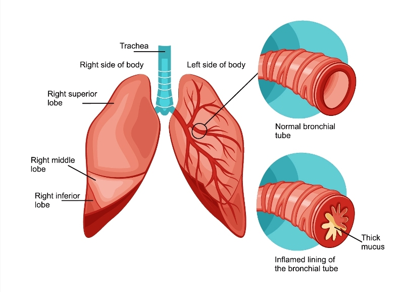 Lung cancer and bronchitis, pneumonia