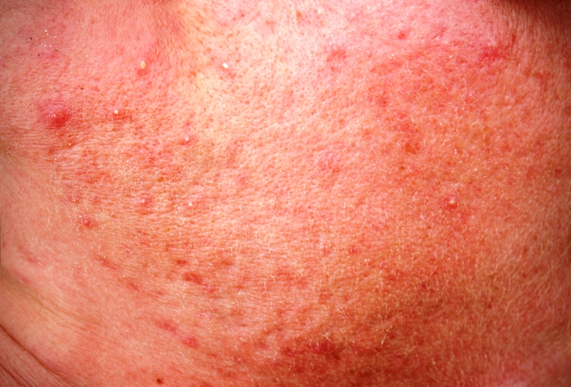 Redness on face due to rosacea
