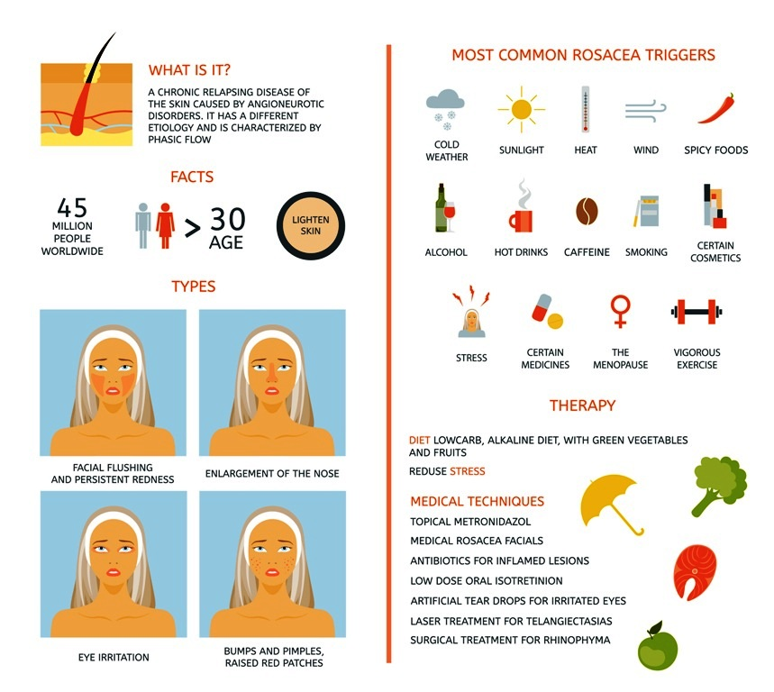Rosacea - Facts, Triggers and Treatments