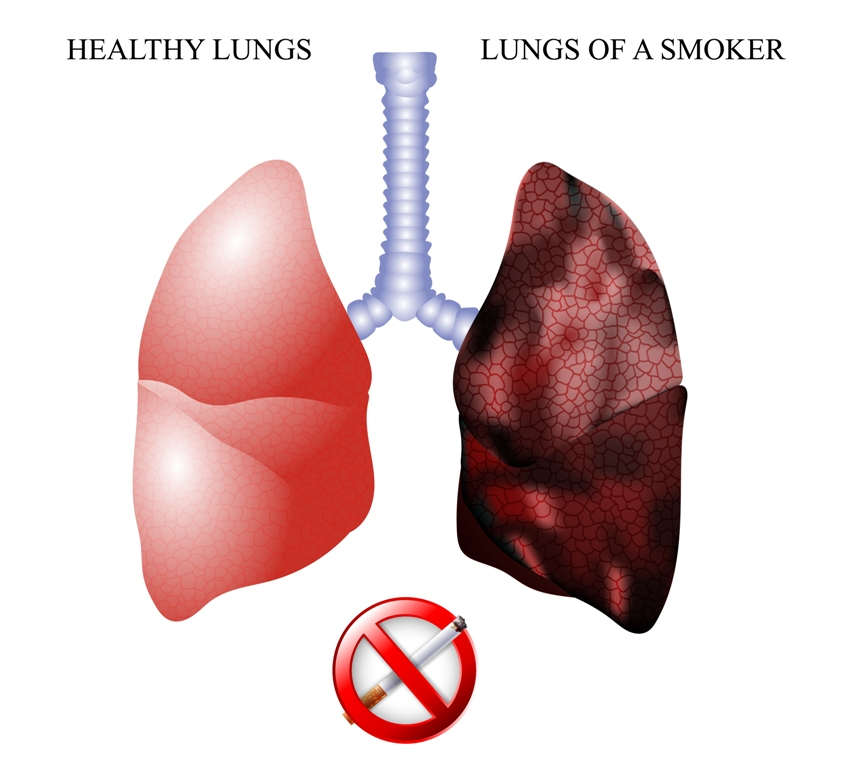 How do lungs of a smoker look like?