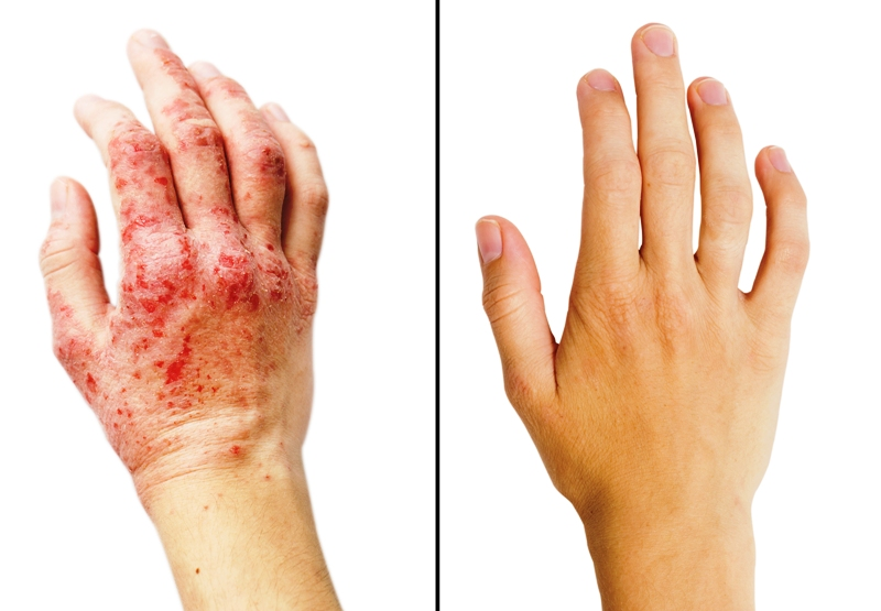 A patient with eczema before and after treatment