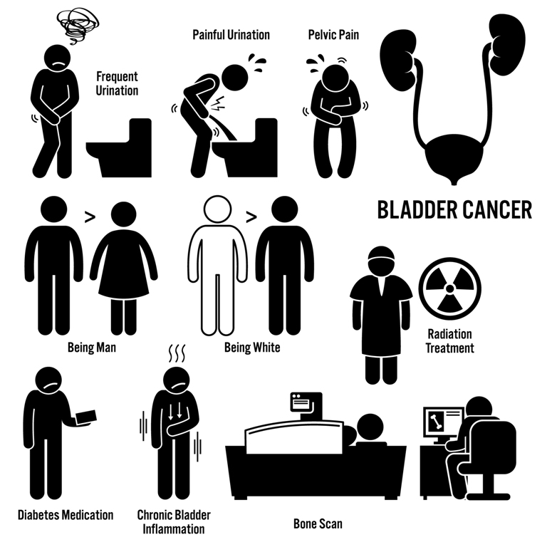Bladder cancer overview - symptoms, risks, causes, treatment, diagnosis