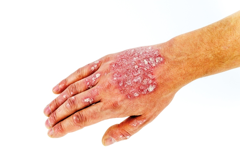 Image of psoriasis on hand