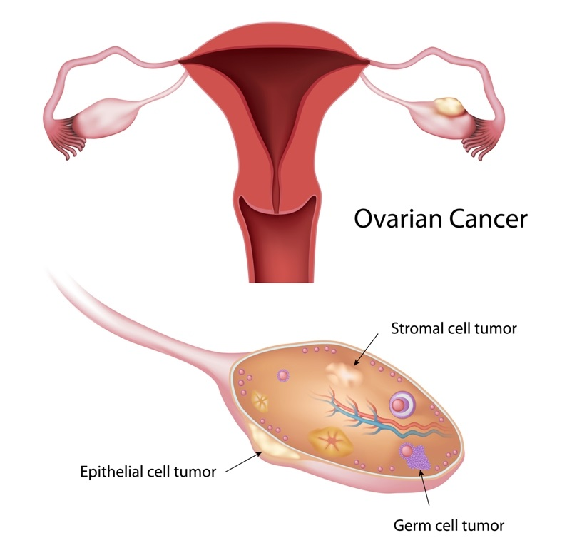 Ovarian cancer and types of tumors in ovaries