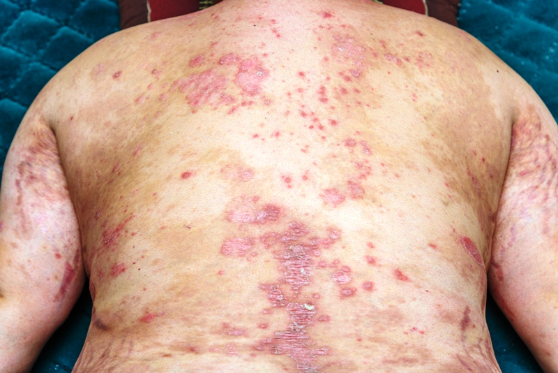 Psoriatic skin plaques affecting the back of a patient