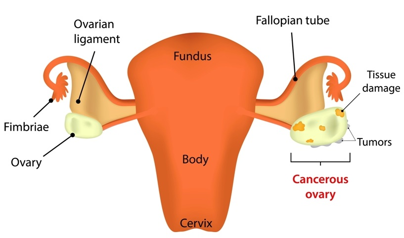Ovarian cancer picture