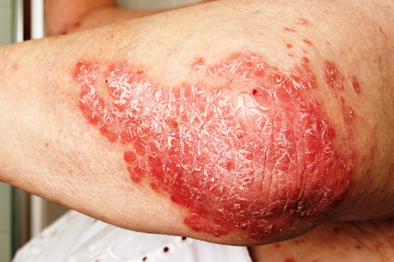 Psoriasis skin disease on elbow
