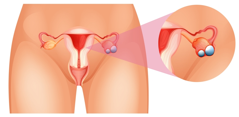 An illustration of ovaries in women and cancer of the ovary