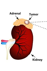 Stage 4 Adrenal Cancer – Survival and Treatment: Where Does Adrenal Cancer Spread?