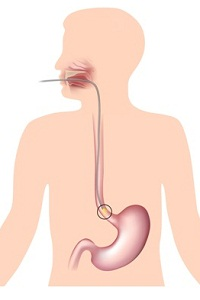 Esophageal cancer: Causes, Signs, Symptoms, Diagnosis, Treatment, Stages, Surgery, Prevention, Survival