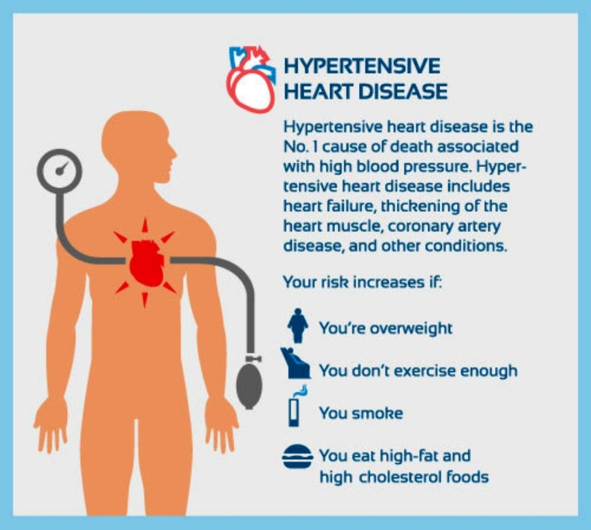 Hypertensive heart disease risks