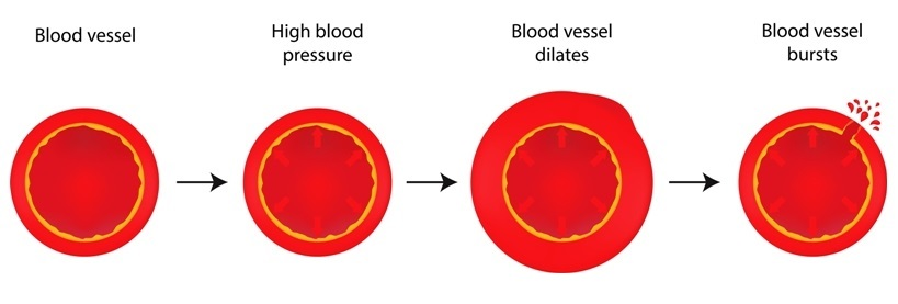 Rupture of blood vessels due to hypertension