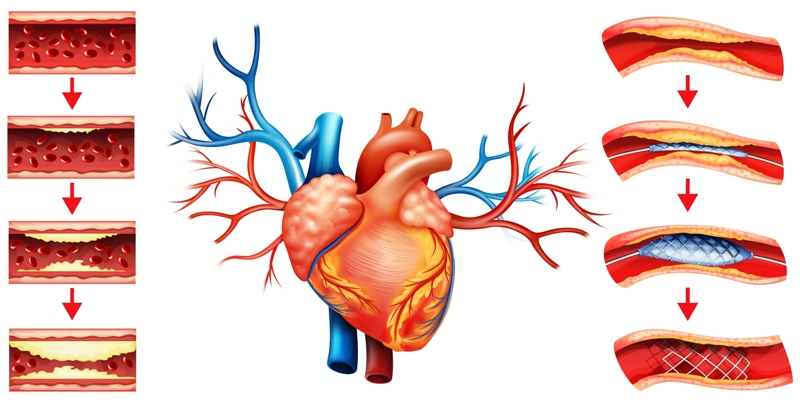 Angioplasty for coronary artery disease