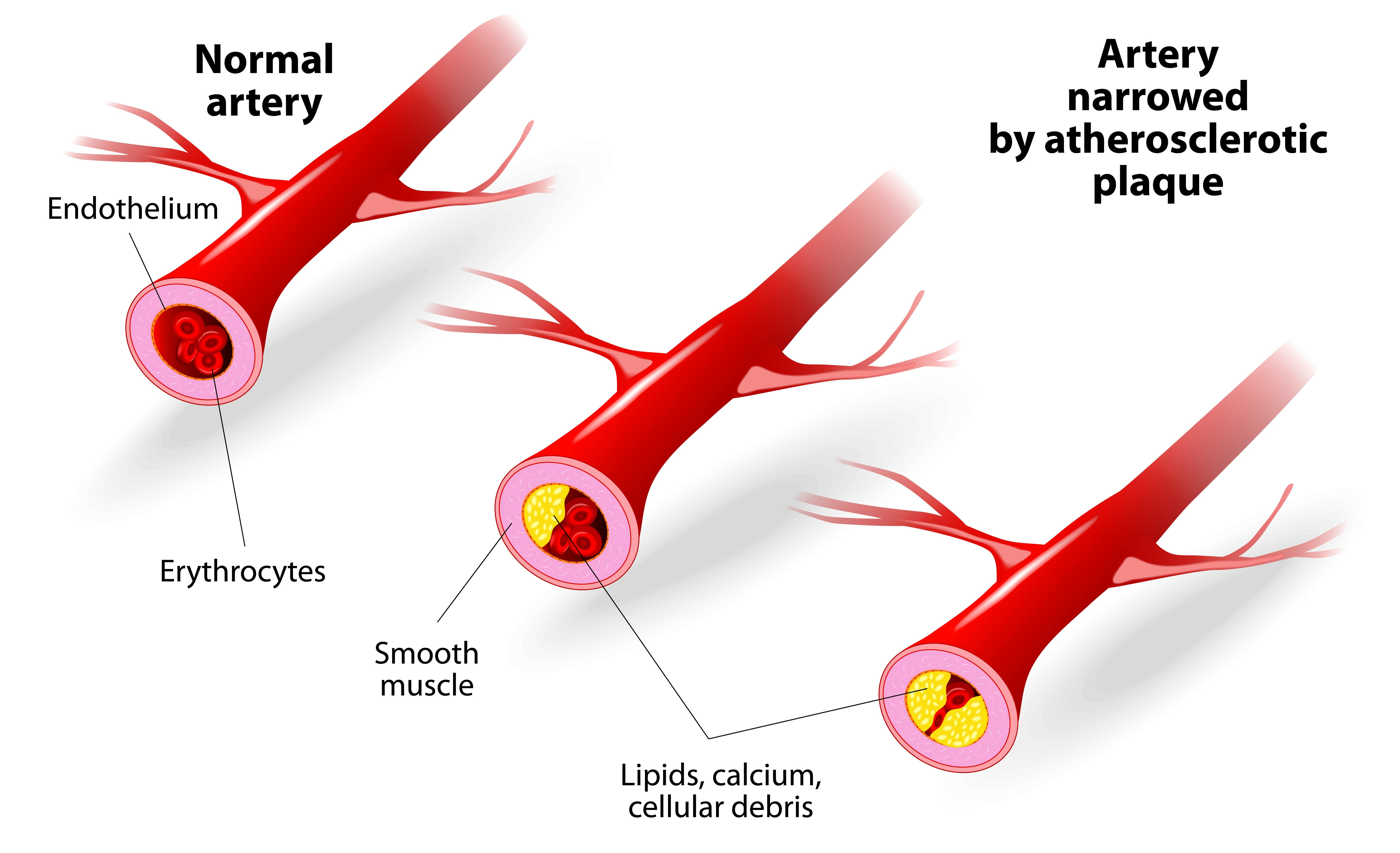 A 3D illustration of plaque blocking the blood flow