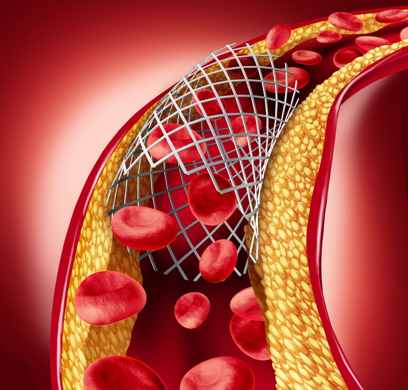 Stent implant concept as a heart disease treatment