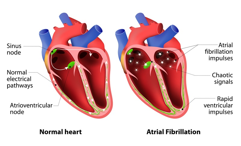 Cardiac arrhythmia irregular heart beat)