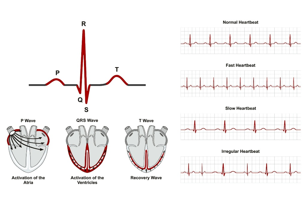 Normal and abnormal heart beats