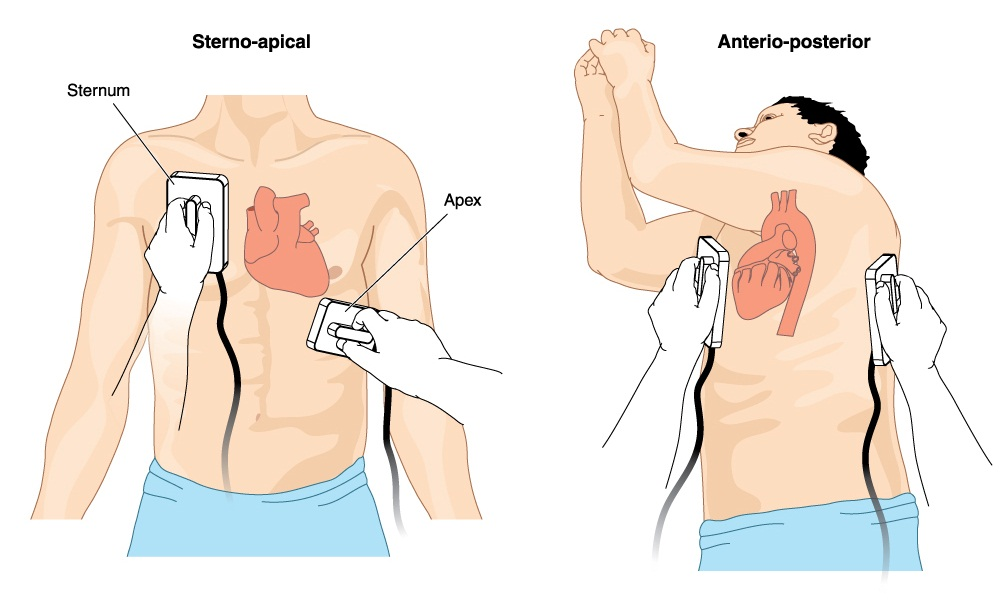 Cardioversion in people with abnormal heartbeats (arrhythmias)