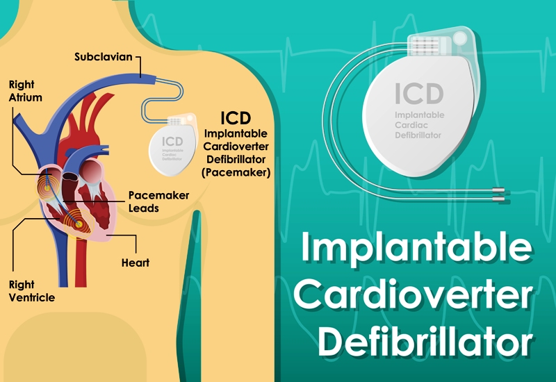 Pacemaker (ICD or Implantable Cardioverte Defibrillator or Pulse Generator)