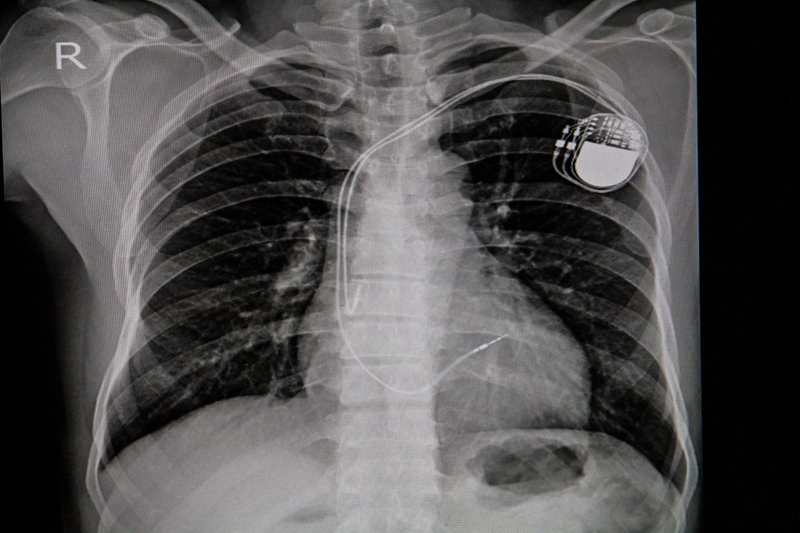 Chest x-ray image of a permanent pacemaker implanted in the chest of a patient
