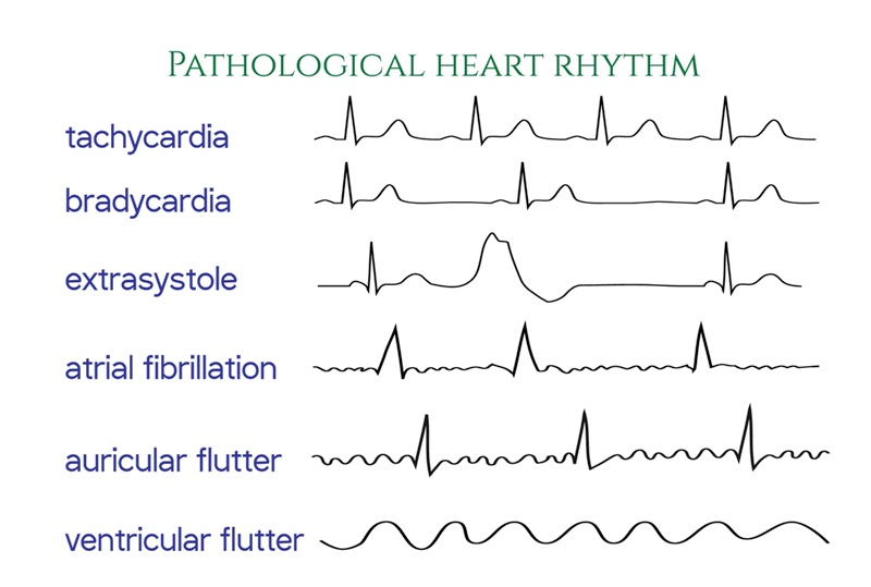 Illustration of different types of irregular heart rhythms