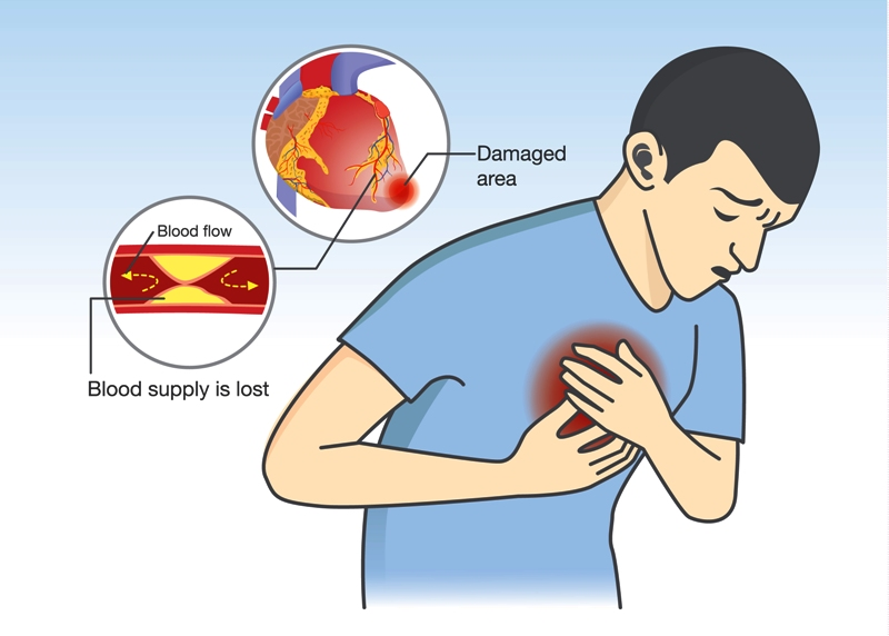 Sharp pain in chest - angina