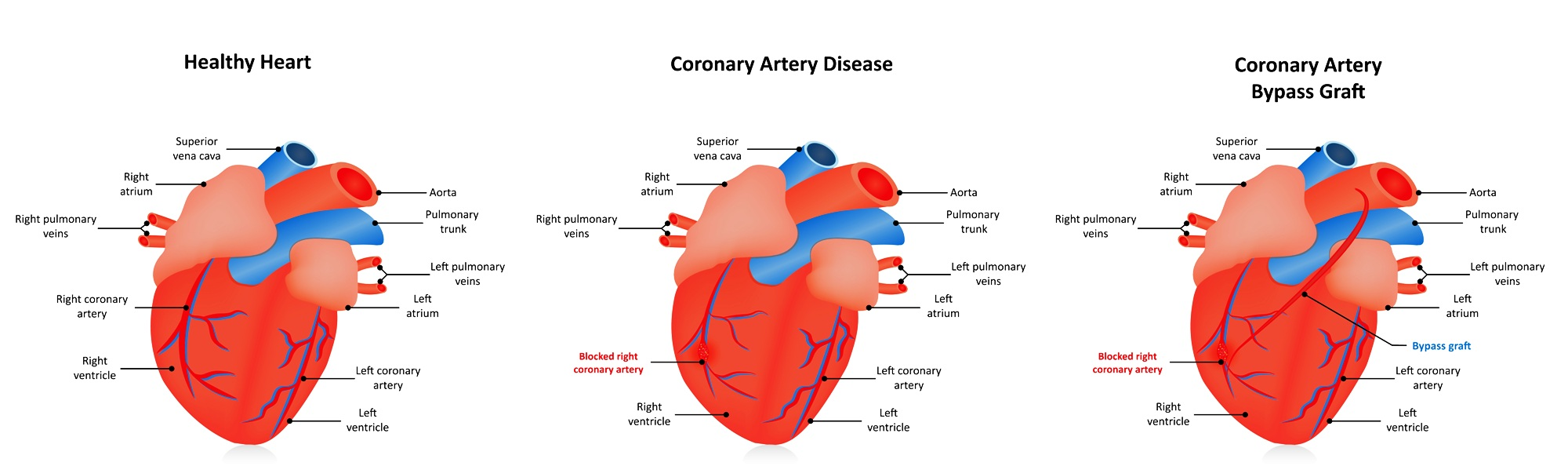 Heart after coronary artery bypass surgery
