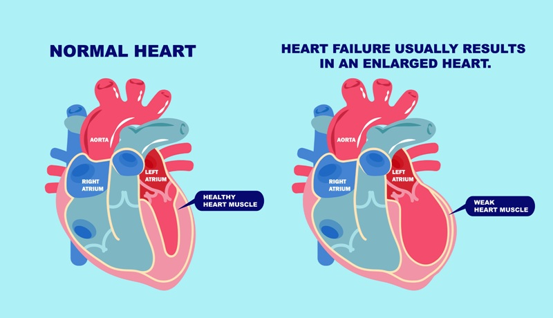 Enlarged heart and heart failure