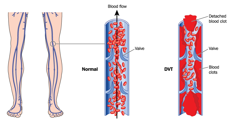 Drawing showing deep vein thrombosis in leg veins