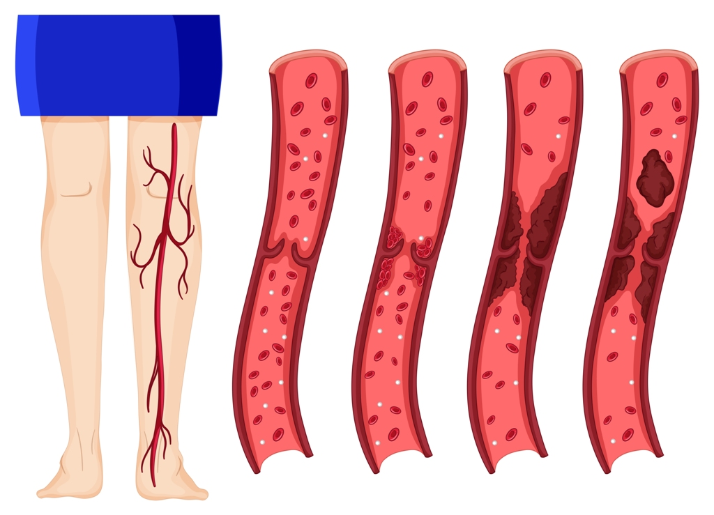 Blood clot in human legs illustration (deep vein thrombosis image)