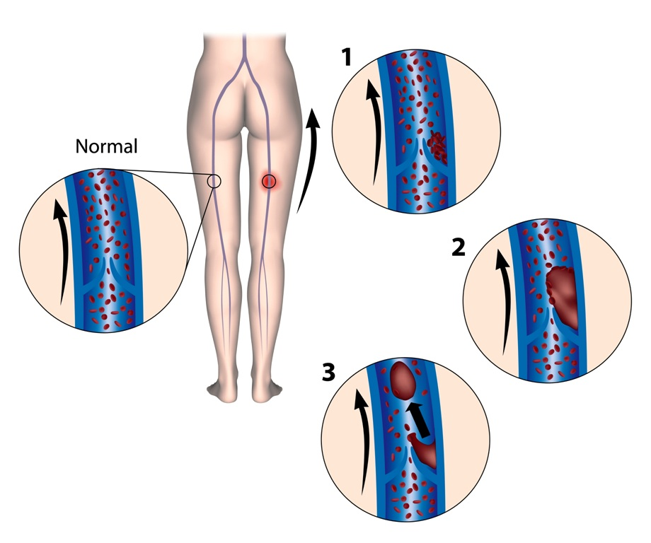 Normal condition vs DVT in leg