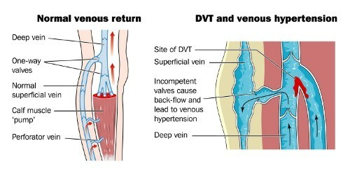 Normal flow vs deep vein thrombosis (DVT) and venous hypertension